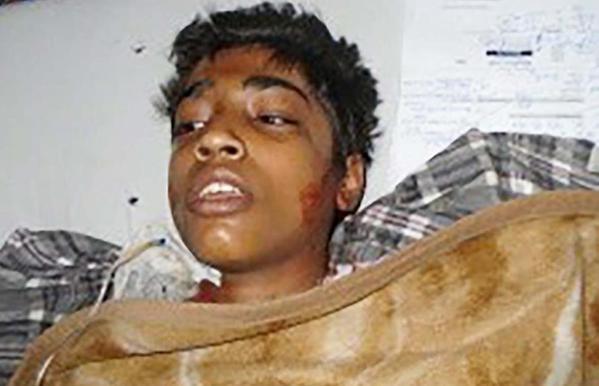 """Pakistán: muere mártir el adolescente al que prendieron fuego por decir """"soy cristiano"""""""