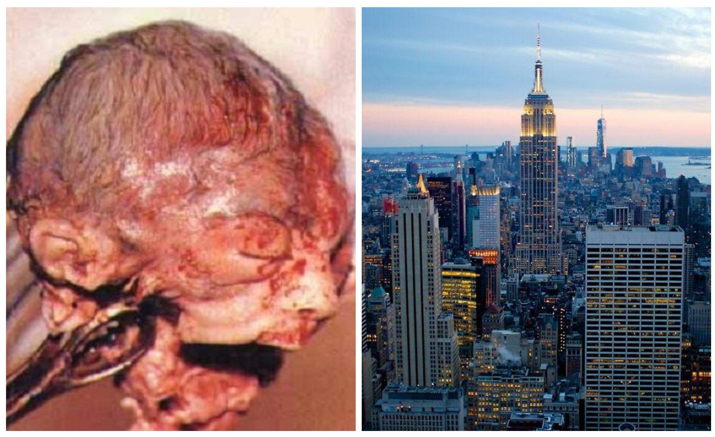 Esto es un aborto, que el Estado de Nueva York respalda sin restricciones