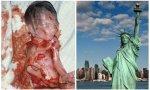 Esto es un aborto, que el Estado de Nueva York respaldó sin restricciones