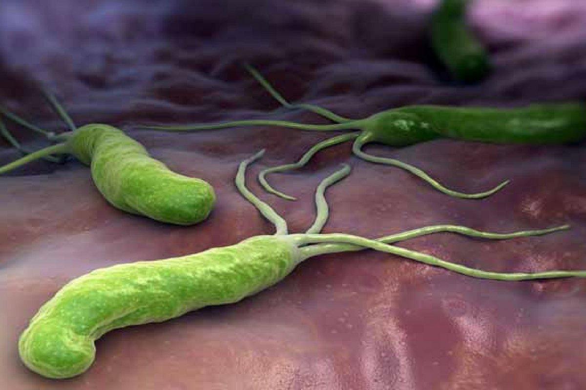 El Helicobacter pylori es una bacteria que coloniza el estómago de muchas personas