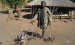 Una víctima de la guerra en Mozambique
