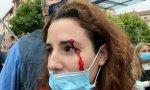 La diputada de Vox, por Almería, Rocío de Meer, recibió una pedrada en el ojo