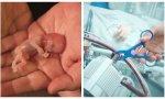 No hay posibilidad alguna de salvar lo que el aborto y la eutanasia destruye